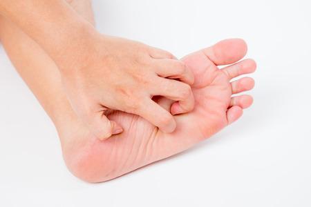 57261819_S_woman_rash_itch_foot_scratch_red_hand.jpg