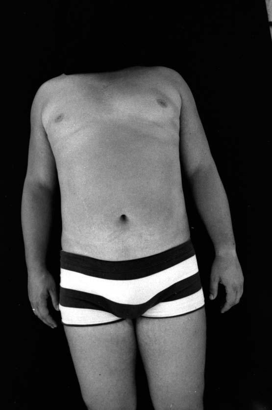 Francis sans tête, 1974