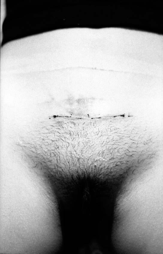 Cicatrice, 1974