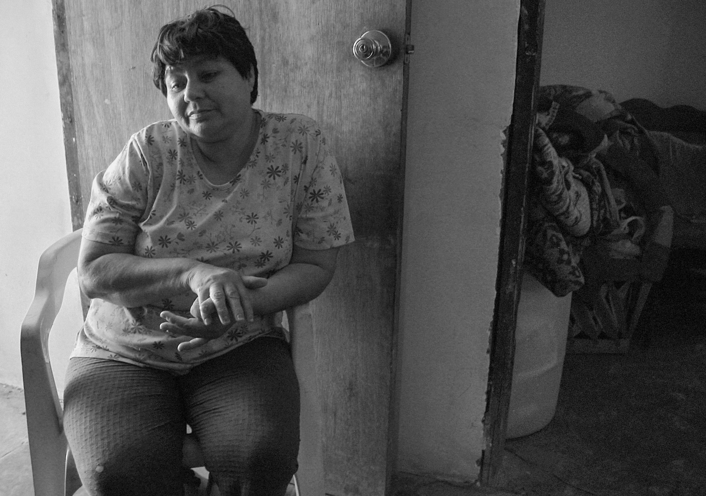 "Armirda Ortiz, longtime resident of El Robledo, a poor neighborhood next to factories.  ""I've had these (rash on her arms and neck) for a few years now. So does my husband. They get worse when the dust kicks up. I'm not sure what it is. I've never had allergies before. I put calamine lotion on the rashes to stop the itching, but it doesn't take them away. I need to use an umbrella when I'm on the street to shield my skin. The sun makes it worse. I haven't been to a doctor, we don't have health insurance, but my husband is working on that."""