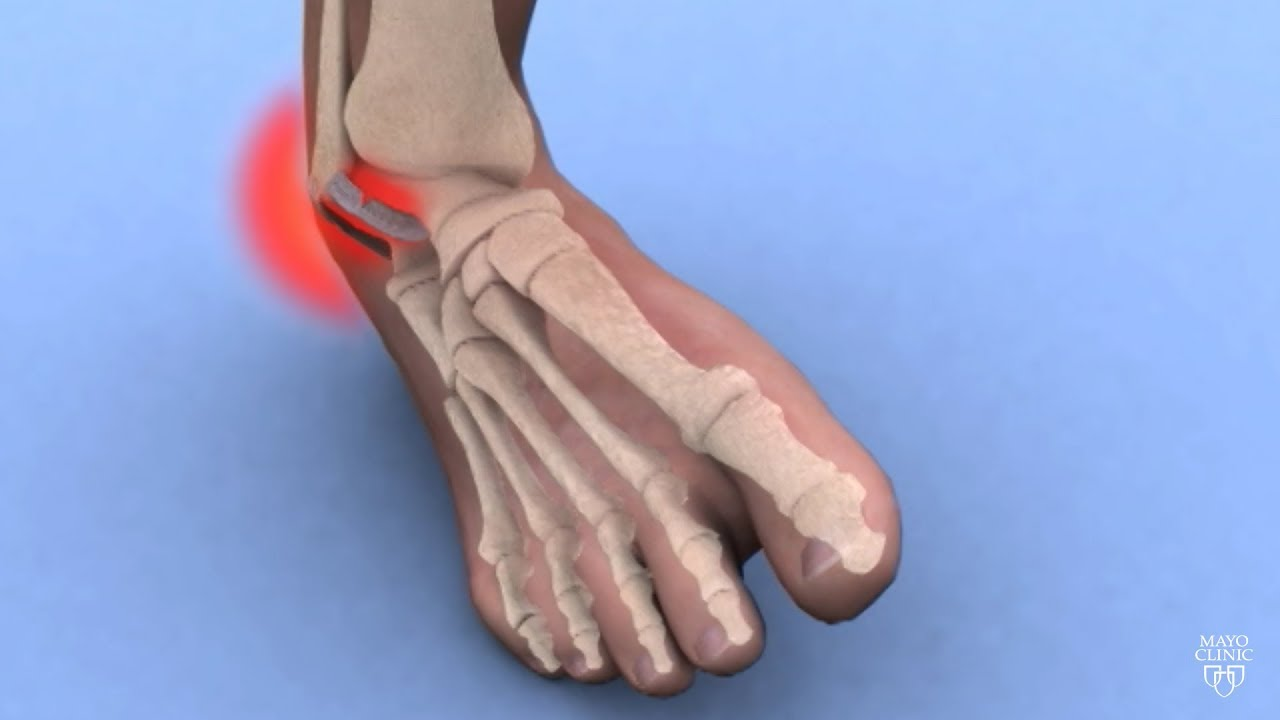- Advanced diagnosis and management of ankle sprains