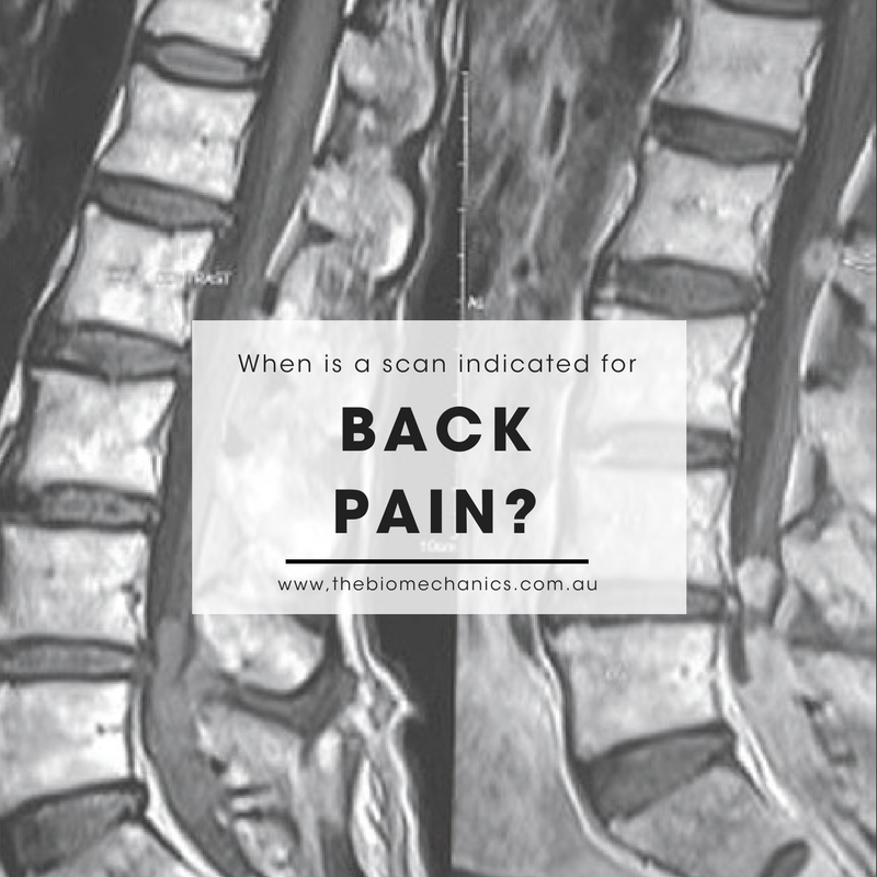 back pain scan.png
