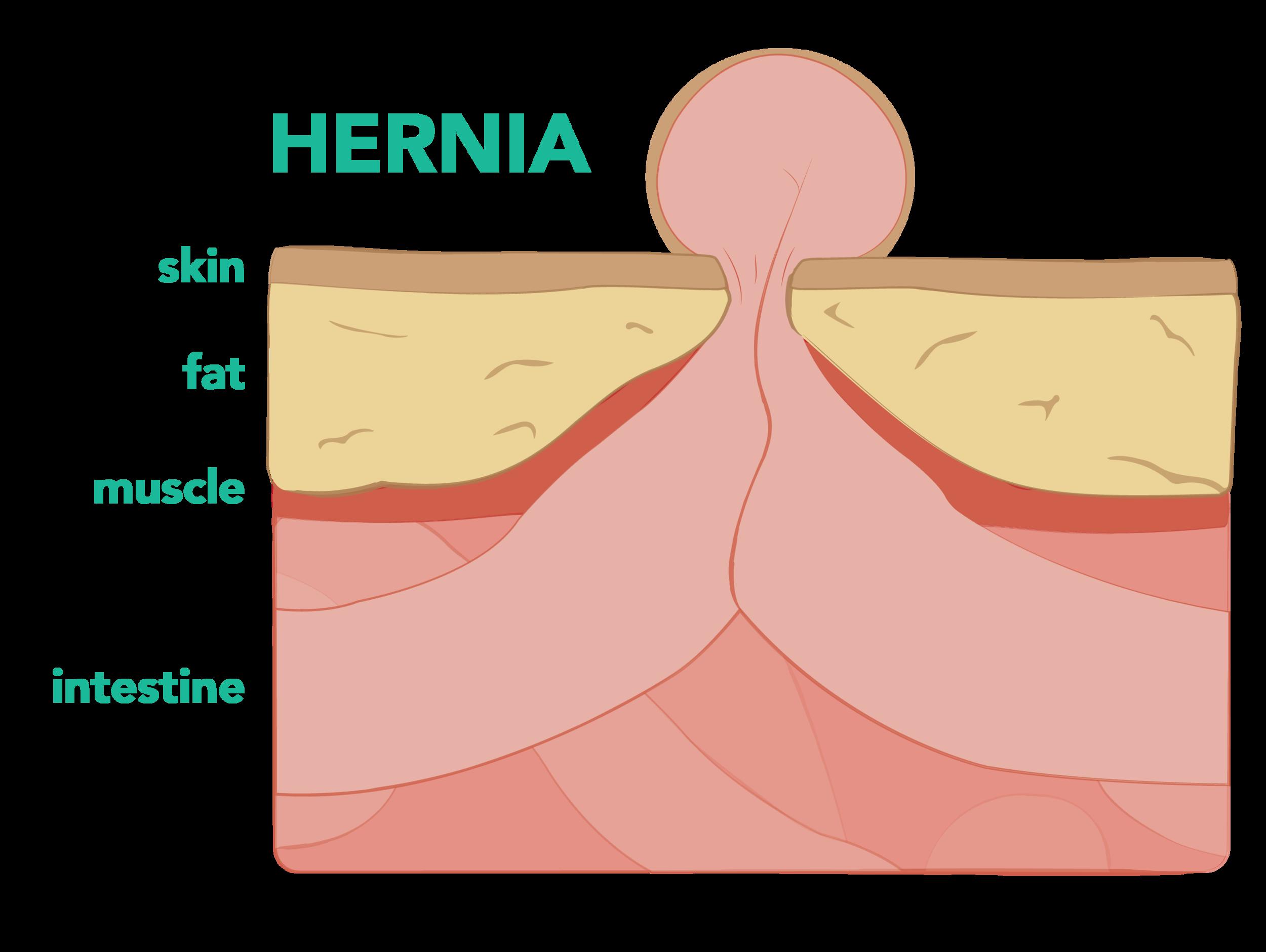 hernia diagram2-01 copy.png