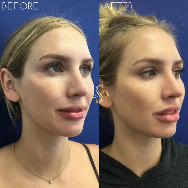Cheek filler voluma