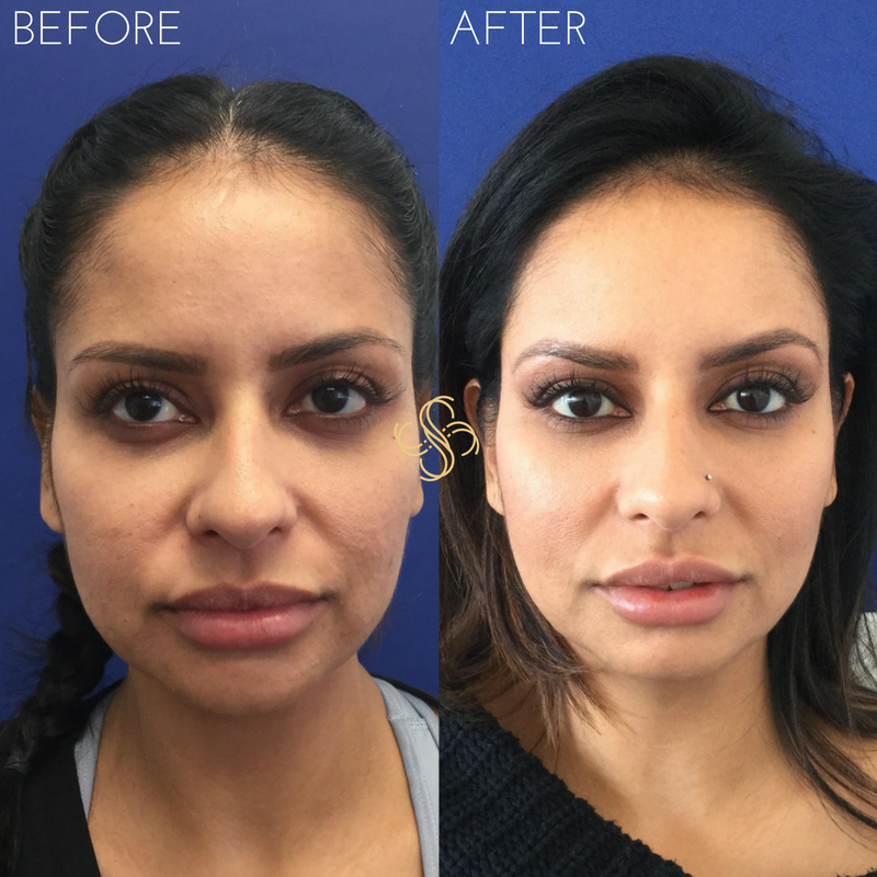 Cheek filler voluma, facial rejuvenation
