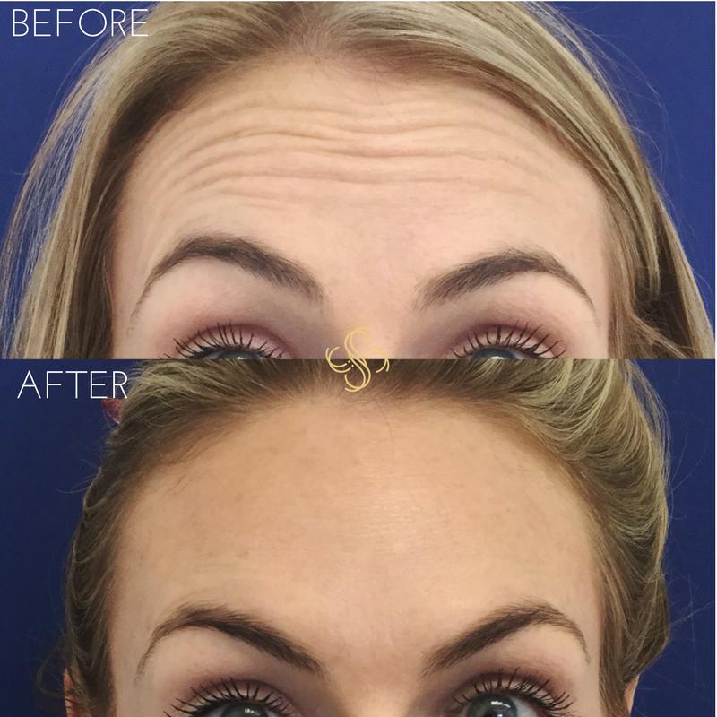 Botox for forhead wrinkles