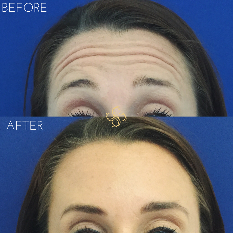 Botox for forhead lines