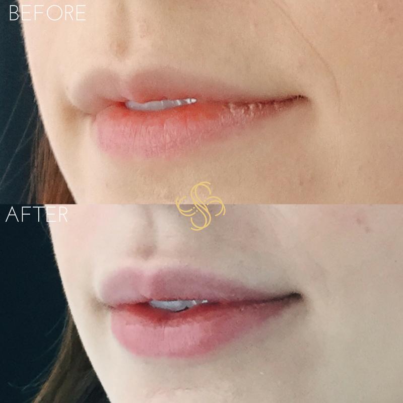 Juvederm for lip filler
