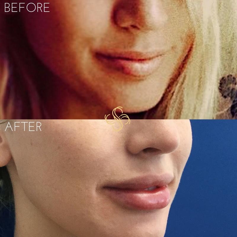 Juvederm lip filler