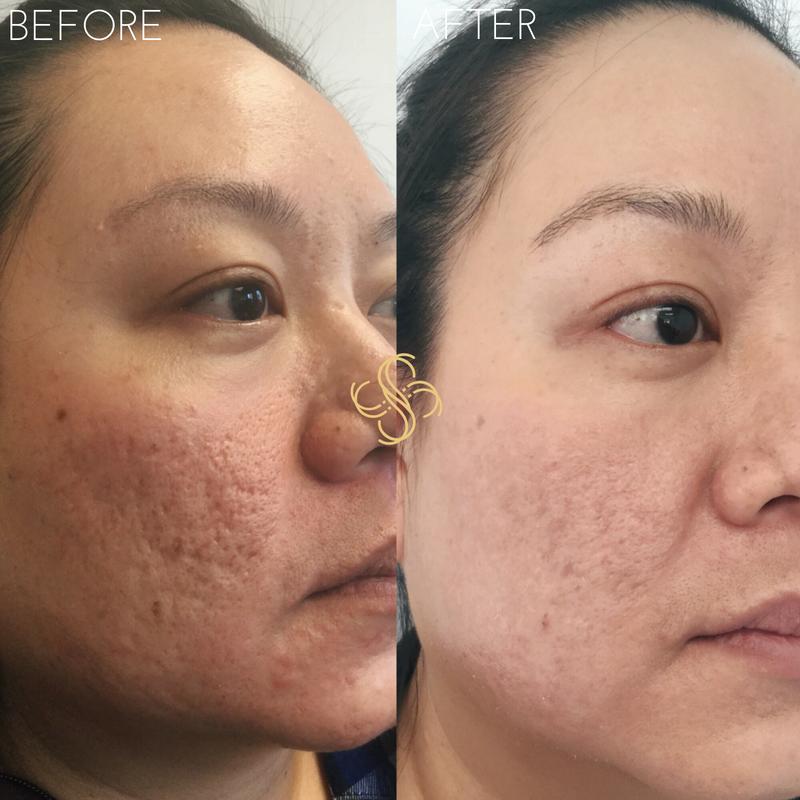 CO2 fractional laser resurfacing acne