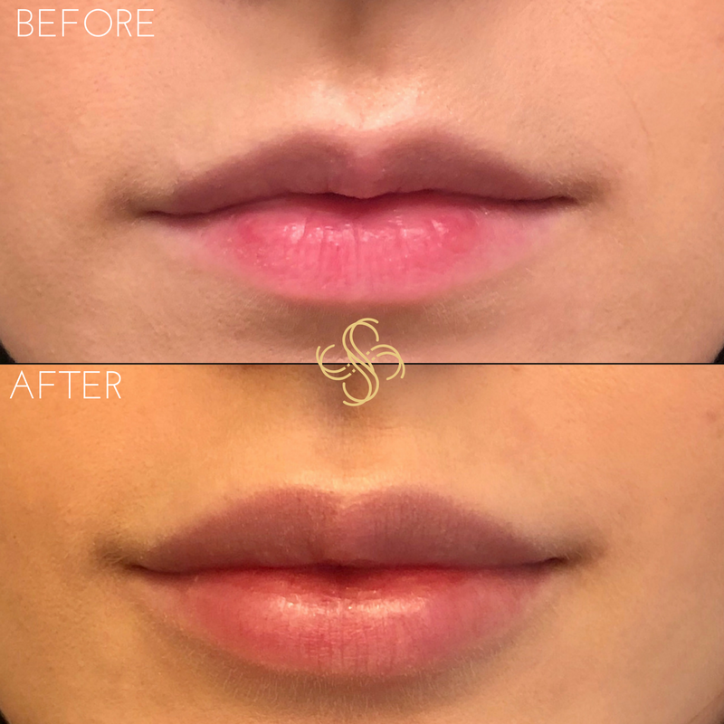 Kaypla lips 5.png