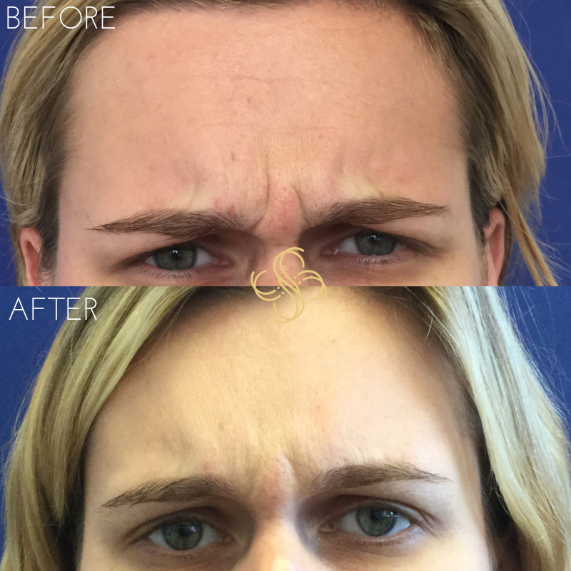 Botox frown lines