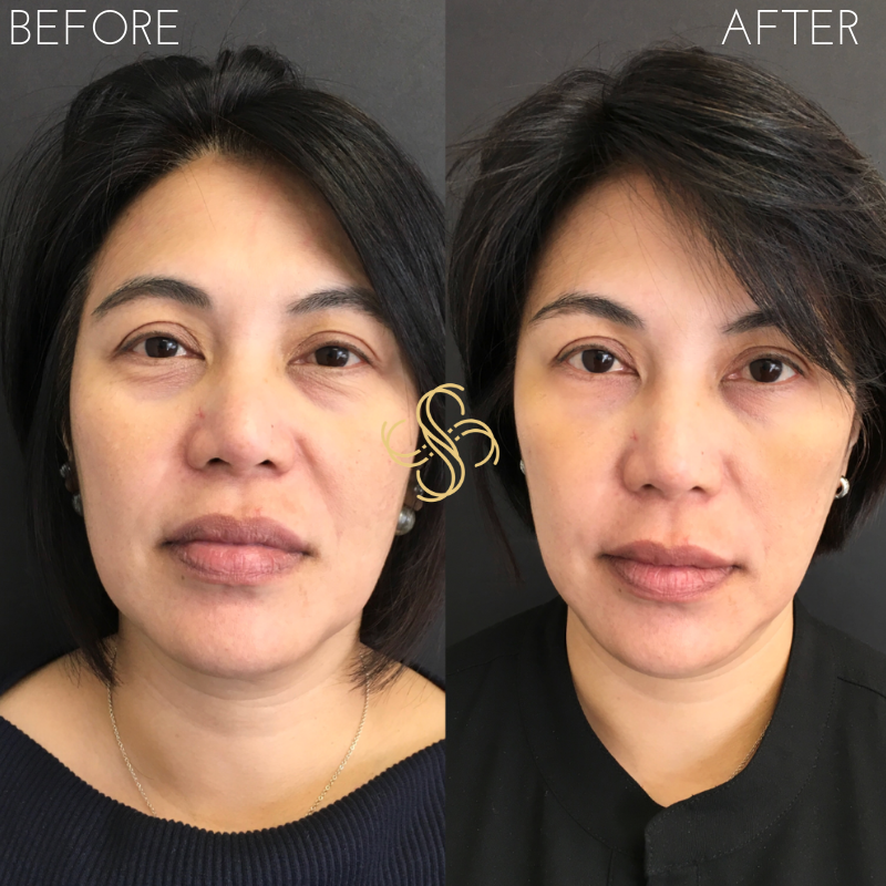 Voluma cheek filler