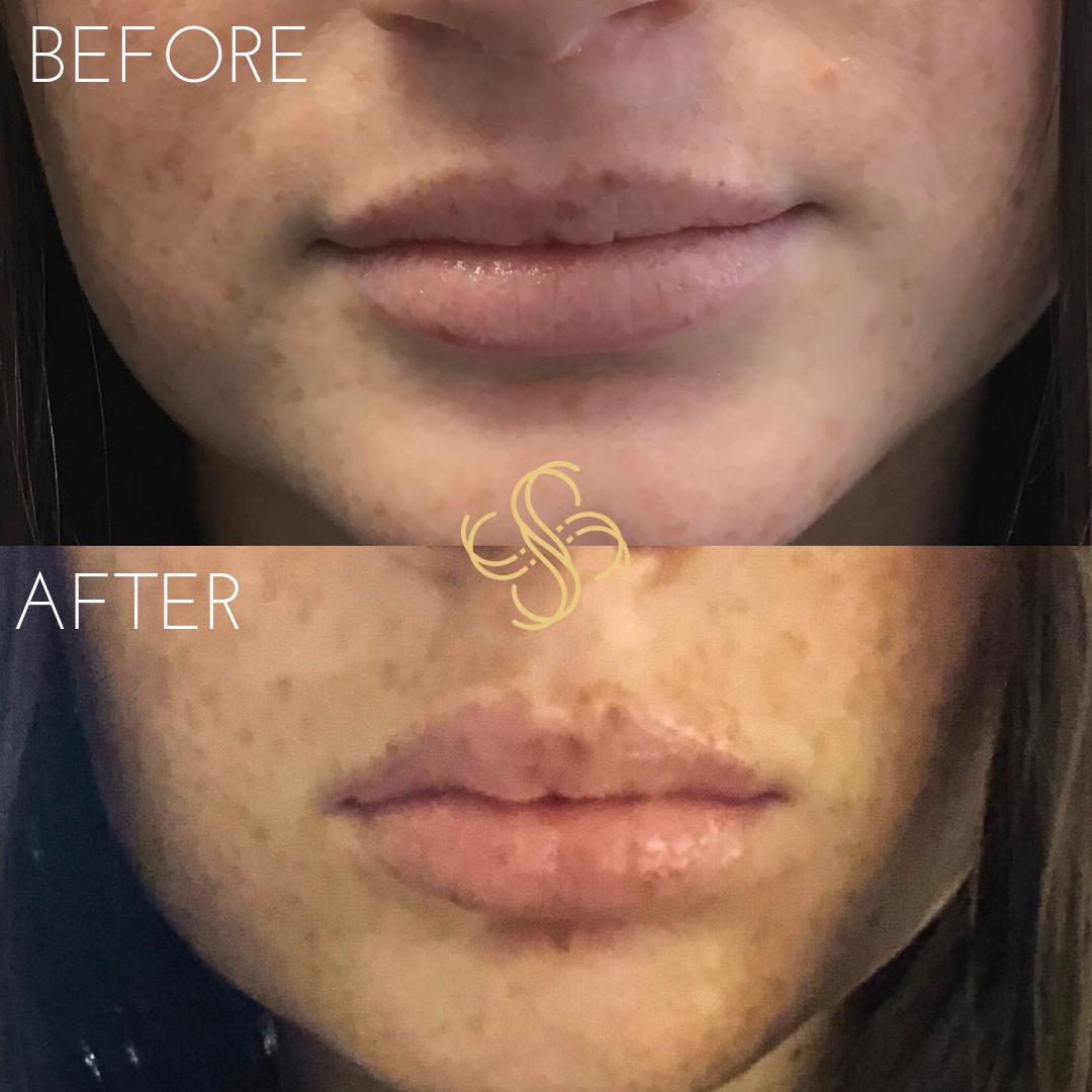 Lip enhancement with Juvederm Ultra Plus