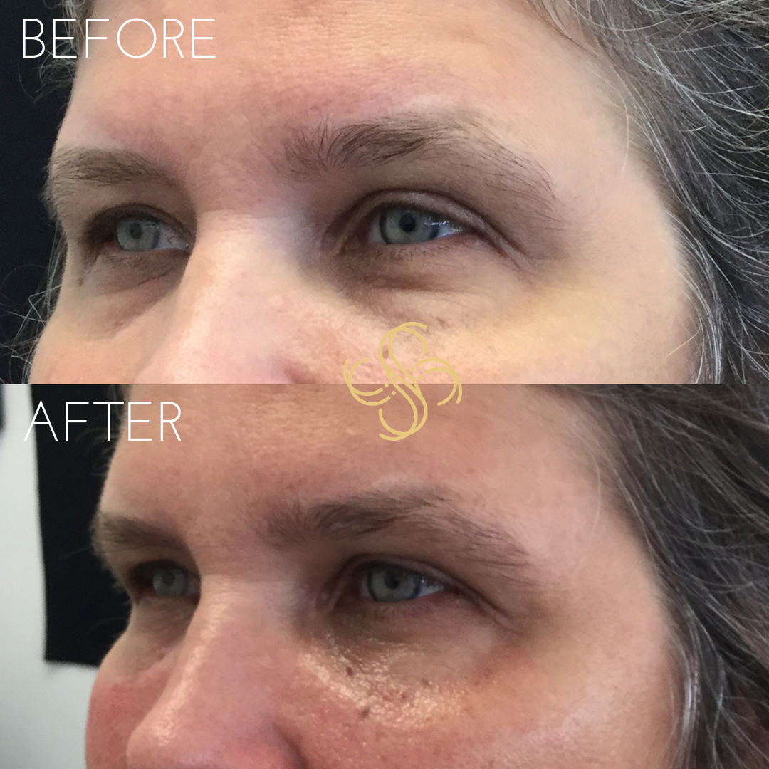 Restylane under eye filler immediately after treatment
