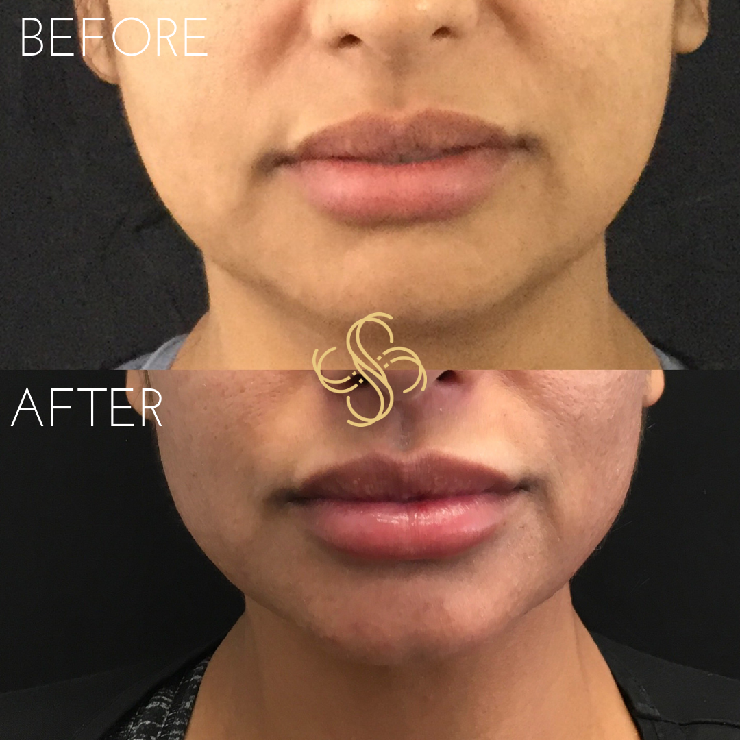 Jawline and chin filler radiesse