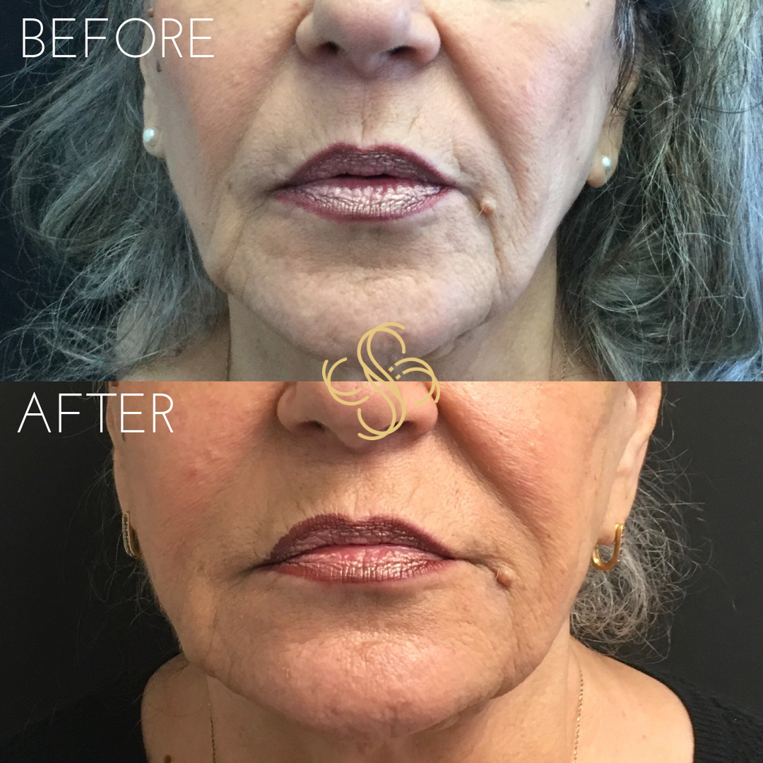Marienette lines and nasolabial fold filler