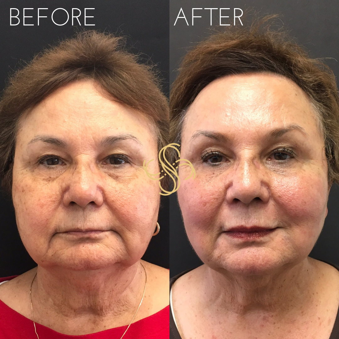 Full face rejuvenation dermal fillers