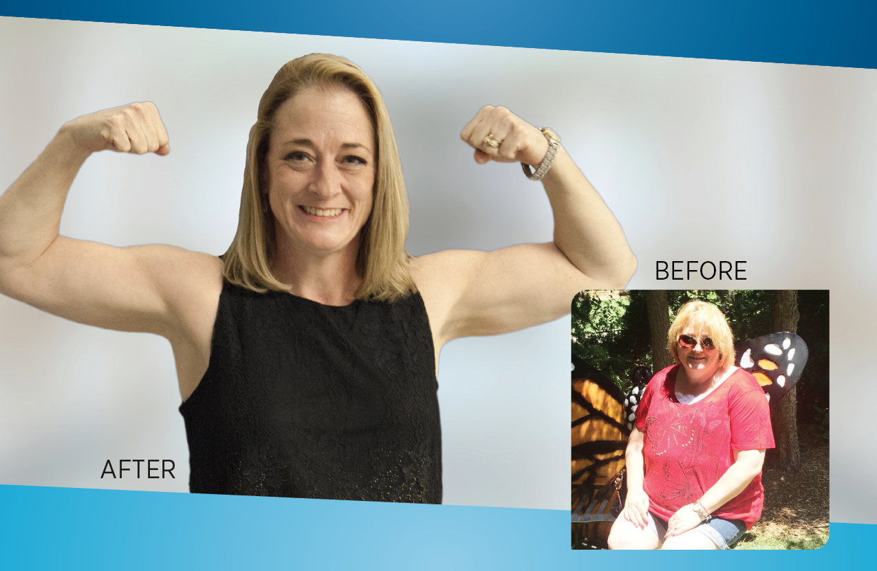 Kelli Dean lost 105 lbs after having the Lap Band procedure at Saline Health System.