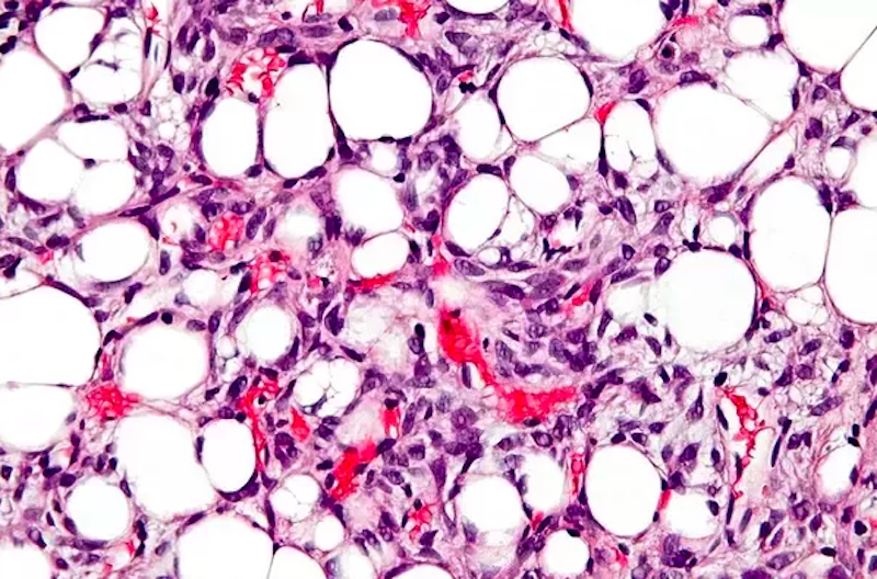 Fat up close. Real close. Microscope close. Oh and it's fat with cancer. How can two things that cause us so much grief be so pretty? Image via Quora:https://bit.ly/2JP4ch5