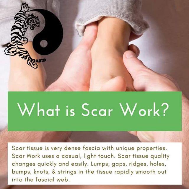 #naturalhealing #bodywork #health #scar #treatment #alternativemedicine #healing #nottingham #nottinghamshire