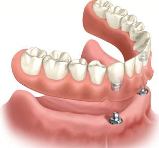 Dental dentures in Chicago by Delaware Dental