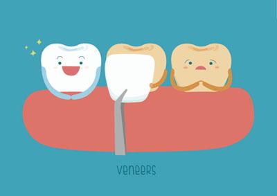 Dental veneers in Chicago by Delaware Dental