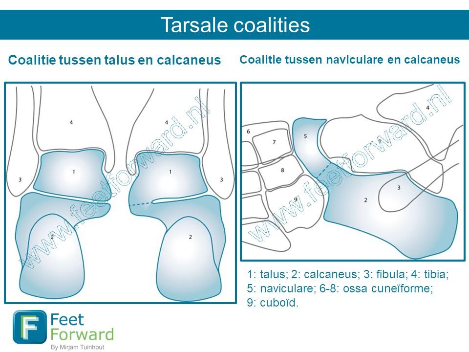 tarsalecoalities