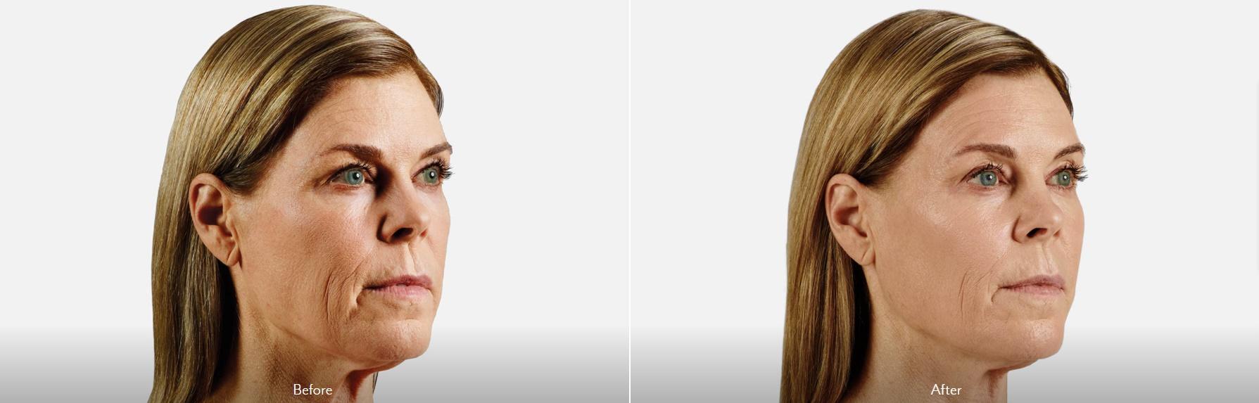 Marionette & Cheek Augmentation