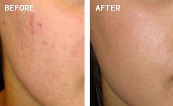 Vampire Facial Treatment Results