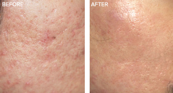 Scar PRP Treatment Results