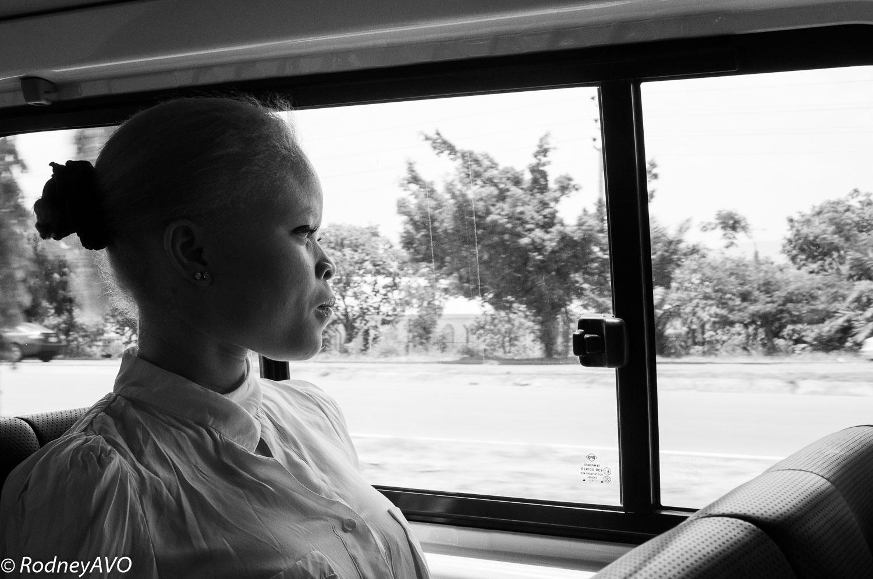 rodneyavo_albinism