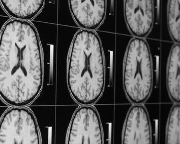 Alzheimer's Prevention Clinic -