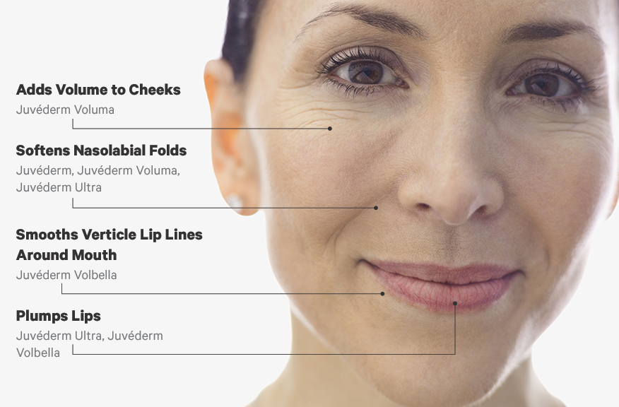 JUVEDERM_Treatment_Area_Infographic_png-876x576.png