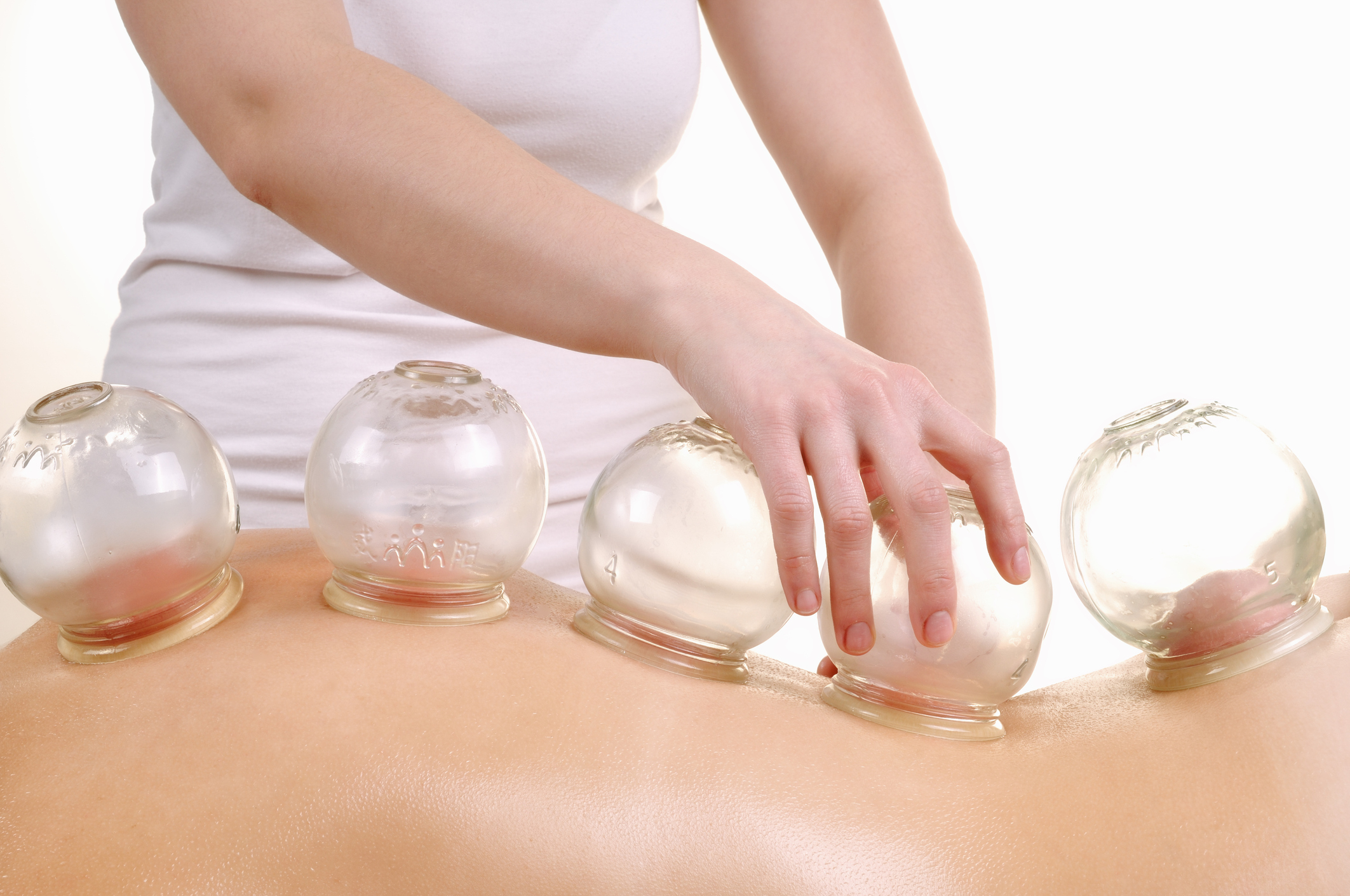 Cupping Therapy - Cupping is a therapy that complements an acupuncture treatment.  Suction cups placed at various points on the body create a vacuum that draws toxins to the surface of the skin to be released.  The effect of this is to encourage the flow of blood in the area beneath the cup.  Cupping therapy removes local congestion and increases the blood circulation to the areas that were originally poorly supplied and thereby relieves the symptoms of numbness and aching pain.