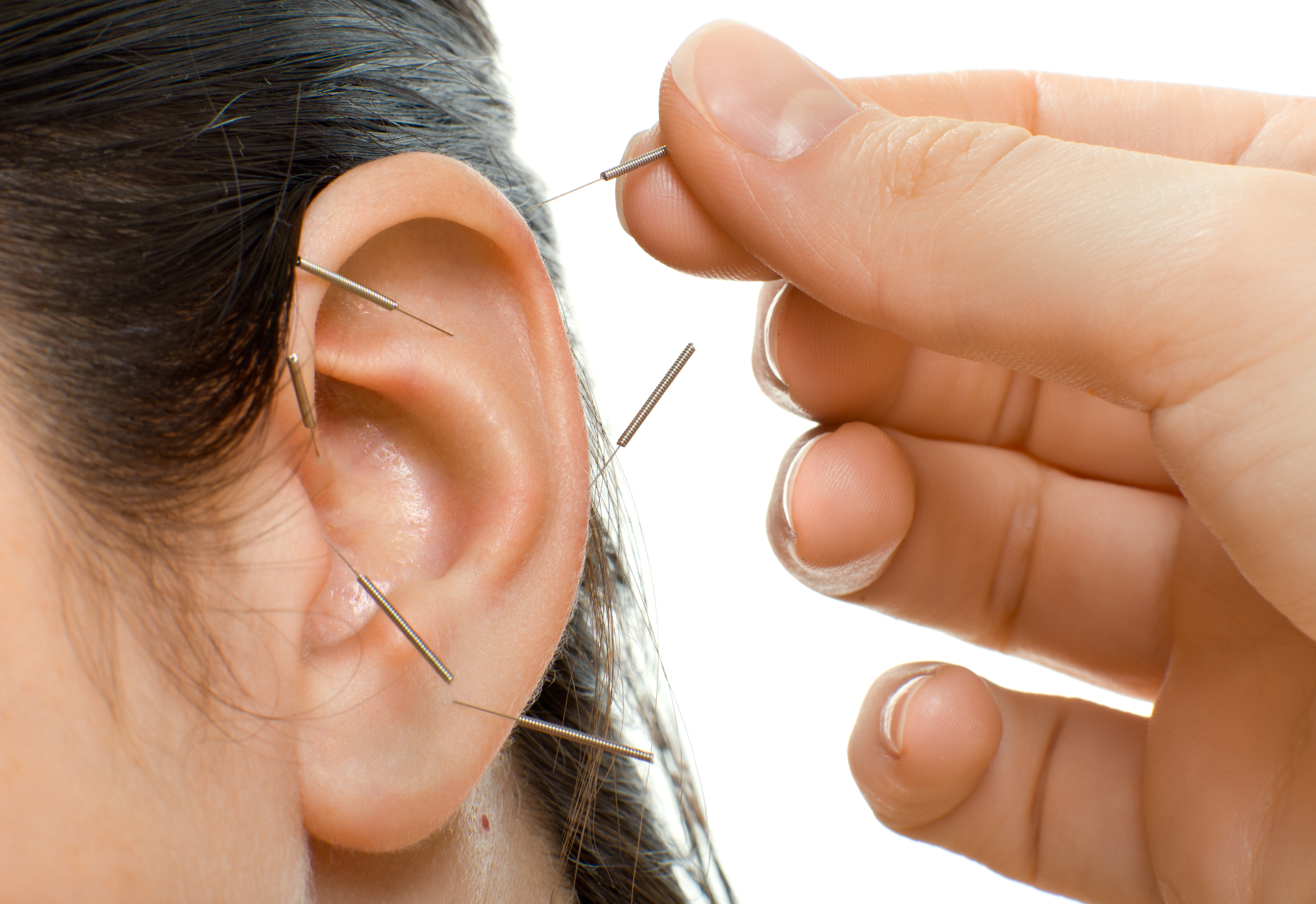 Auricular Therapy - According to the principles of auricular therapy each area of the ear corresponds to a different anatomical portion of the body.  Auricular therapy works by stimulating the central nervous system through the cranial/spinal nerves on the auricle of the ear. These points are stimulated by using tiny acupuncture needles or using tiny magnets or seeds held on by adhesive.  Auricular therapy stimulates internal organs, improves general circulation, aids in the flow of the lymphatic system, induces deep relaxation, stimulates the brain, and improves the immune system.  Almost all health conditions can be affected to some degree by stimulating the ear points.  The most common uses are the control of chronic pain, detoxification from addictions such as smoking, relief from nausea and high blood pressure.