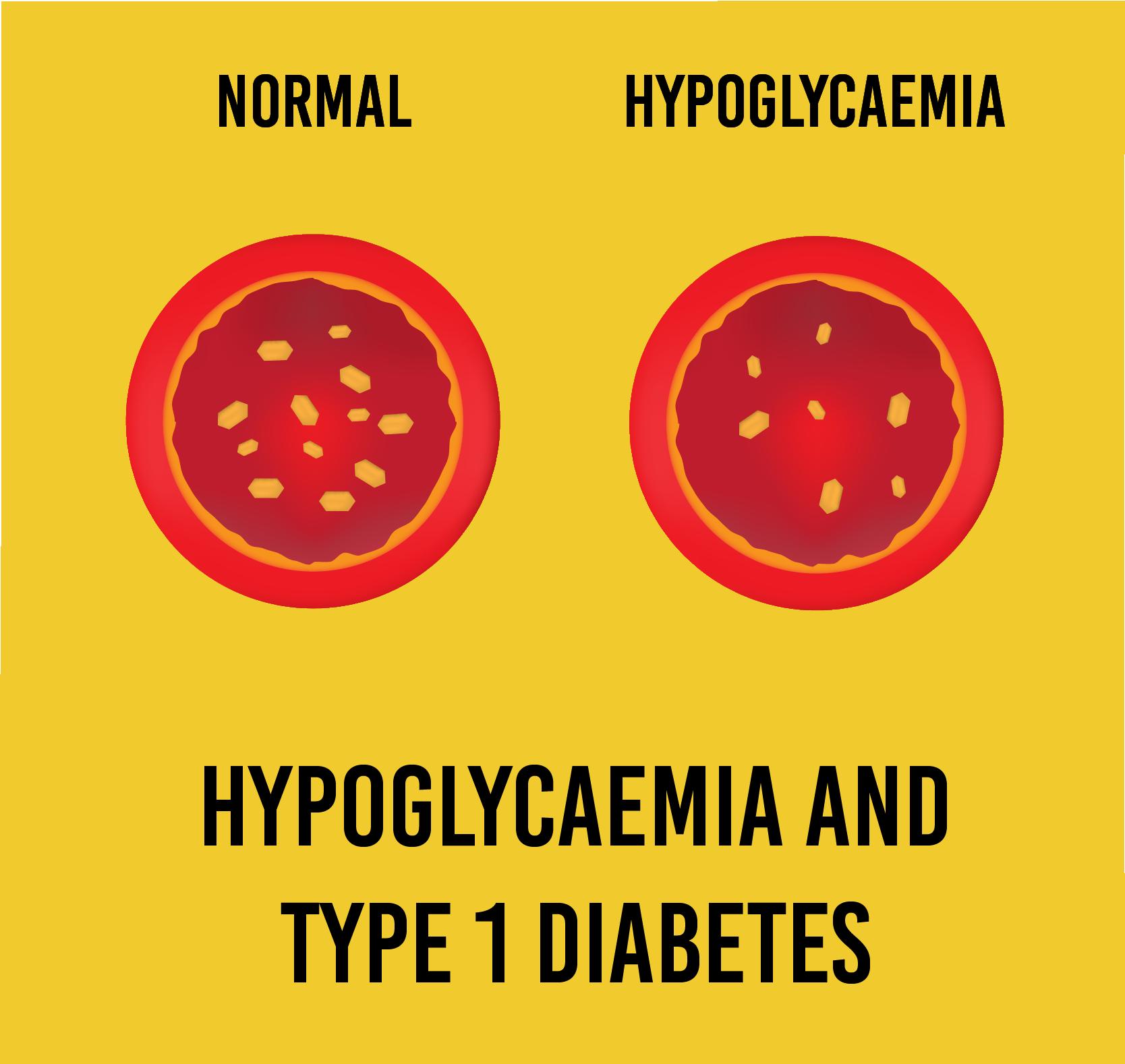 Type 1 diabetes_Artboard 1p copy 3.png