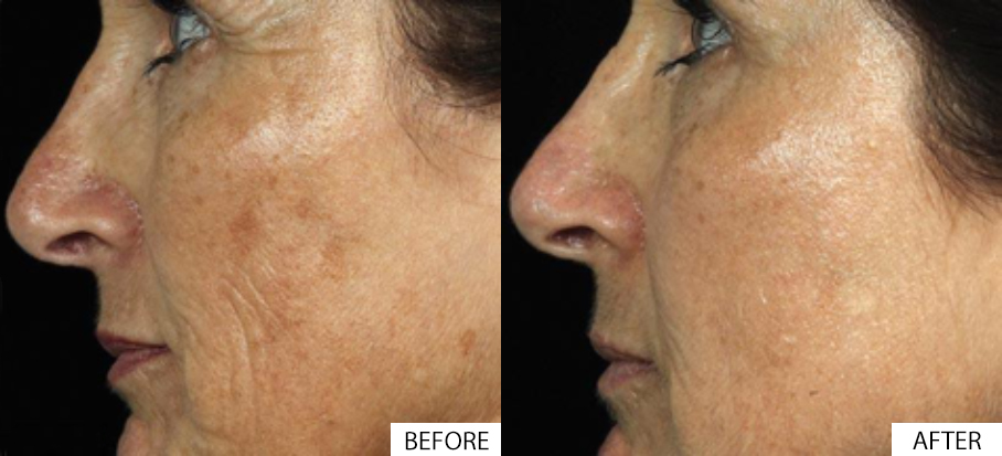 Pigmentation Before and After.jpg