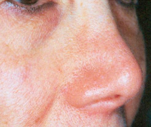 Treatment of Spider Nevi 2.jpg