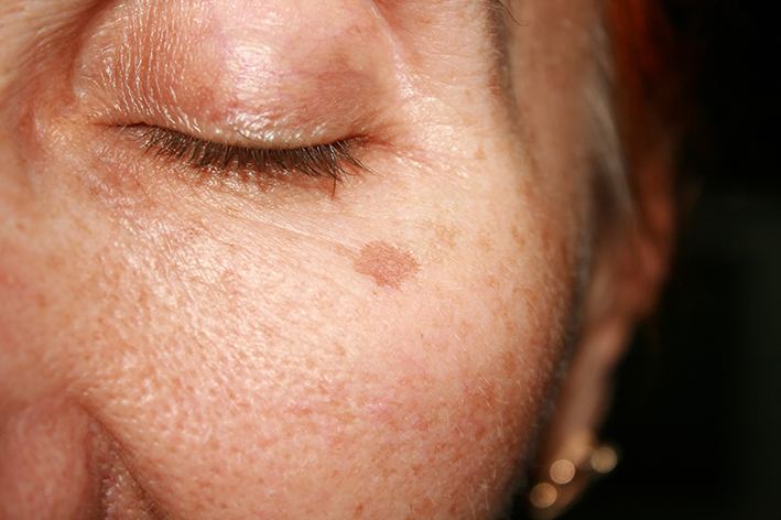 Dermatological symptoms:Skin Pigmentation on the face.