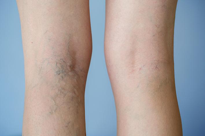 Dermatological symptoms: Leg veins and varicose veins.