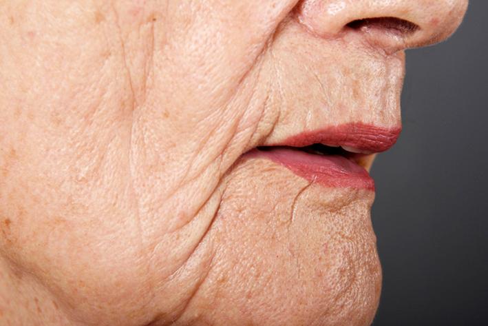 Dermatological symptoms: Sagging Facial Skin.