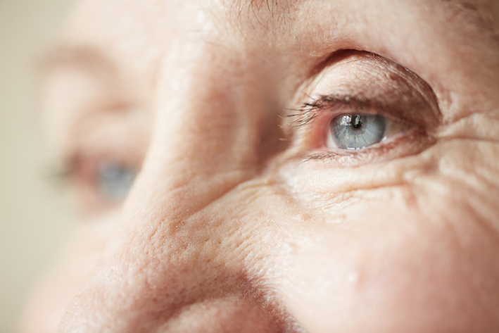 Dermatological symptoms: Fine lines and wrinkles of the skin.