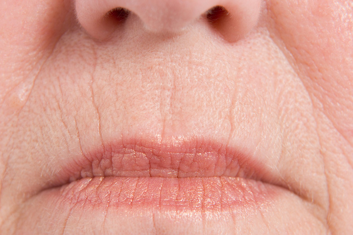 Dermatological symptoms: Low volume of the lips.