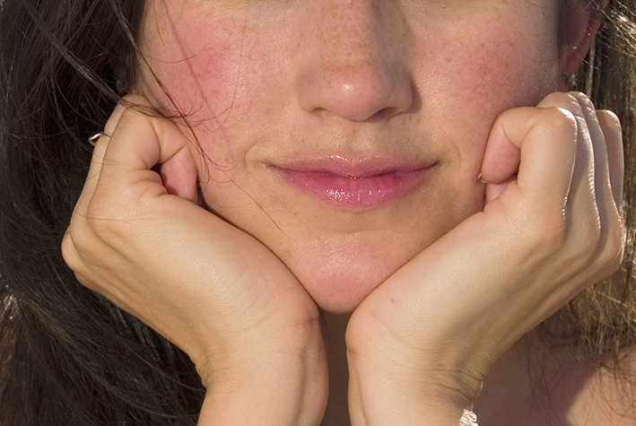 Dermatological symptoms: Skin redness on the face.