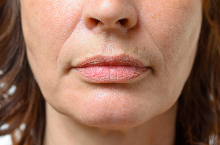Sagging Skin and Lips.jpg