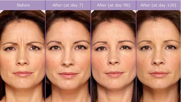 Botox - Botox® injections are one of the easiest and most effective cosmetic enhancements used today in relation to anti-aging. BOTOX® Cosmetic is the only approved treatment to temporarily improve the appearance of both moderate to severe frown lines between the brows and crow's feet lines in adults. We are also able to treat excessive underarm sweating with Botox injections. Call for a free consult and we will discuss this treatment.