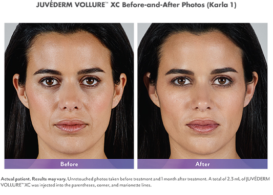 Juvederm Collection of Fillers - JUVÉDERM® is the #1 selling collection of hyaluronic acid fillers in the US. Each product in the JUVÉDERM® collection of fillers adds volume to a different area of the face to lift cheeks, smooth parentheses lines, or plump the lips. The results are subtle and long-lasting.