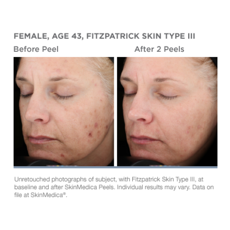 Chemical Peels - The one truth about skincare is that it is never too early to start to take care of your skin. Chemical Peels in conjunction with microdermabasion is a great starting point for achieving younger, healthier looking skin and is still considered to be one of easiest and most cost effective treatments no matter what your age. However, chemical peels vary! Pure Medispa offers several different types of peels. As part of your initial consultation we will discuss with you the various types, the added benefit of microdermabrasion in conduction with your skin type.