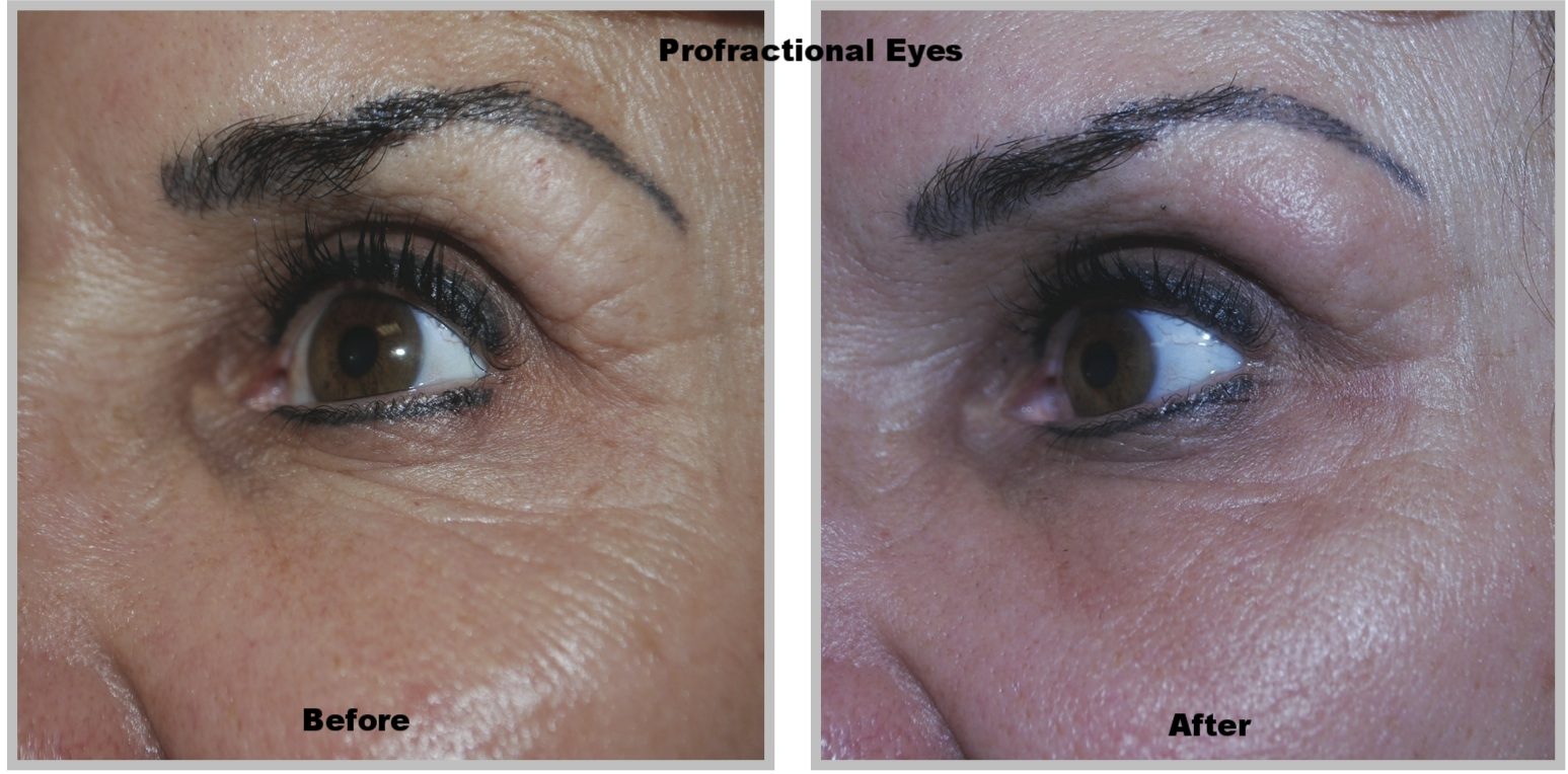 Profractional Laser - The ProFractional laser can overcome subtle imperfections of the skin. This includes reduction or elimination of acne scares, skin pigmentation, fine lines and wrinkles, acne, texture and tone of the skin, evens out skin discoloration, the effects of sun damage.